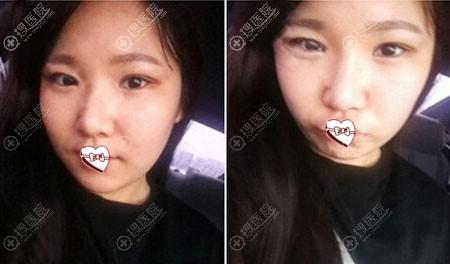 韩国ID整形医院眼鼻整形术后1个月