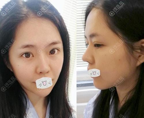韩国普罗菲耳Profile整形医院鼻修复案例