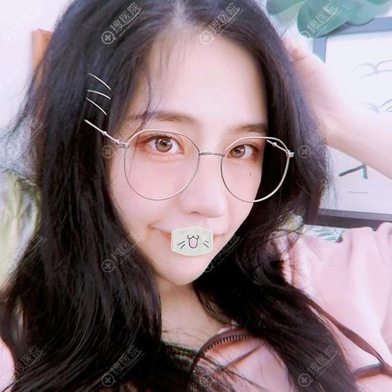 韩国普罗菲耳假体隆鼻+耳软骨垫鼻尖修复案例