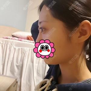 韩国原辰孙瑜璃为我做的埋线双眼皮恢复1个月后感觉还挺满意的
