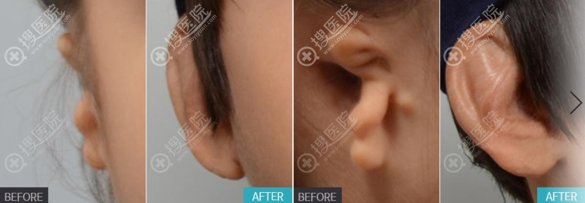 韩国普罗菲耳整形医院耳再造案例前后效果对比图