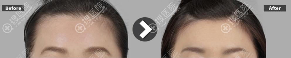 韩国ID整形医院发际线额头缩小术案例