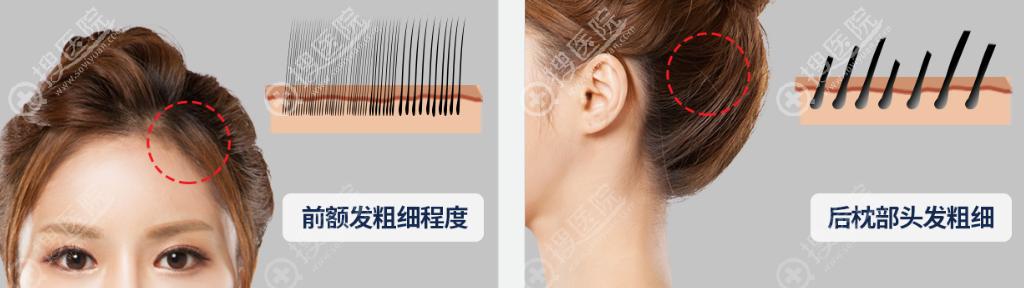 发际线种植时提取前额与后枕部毛发区别