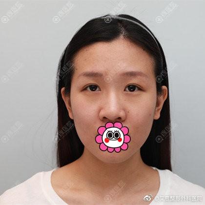 到韩国艾恩做双眼皮隆鼻前