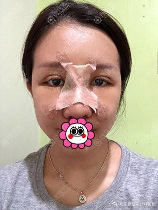 做双眼皮隆鼻术后即刻