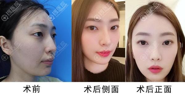 韩国纯真整形医院双眼皮+隆鼻+埋线提升案例