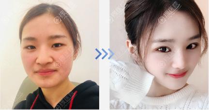 韩国纯真面部埋线提升+眼鼻手术案例
