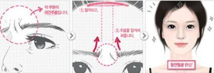 额头缩小可改善眉毛位置、祛除眉间皱纹