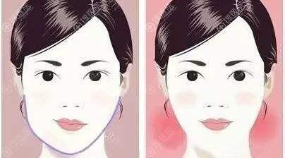 下颌骨不对称做磨骨手术能改变吗