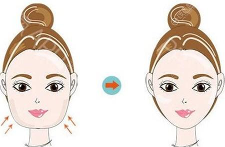 面部吸脂恢复一个月还是肿啥时候才能变成小脸美女?