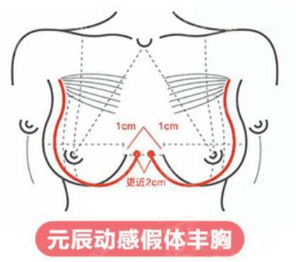假体隆胸标准示意图