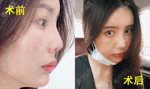 韩国纯真整形医院崔宰源鼻修复案例前后对比图