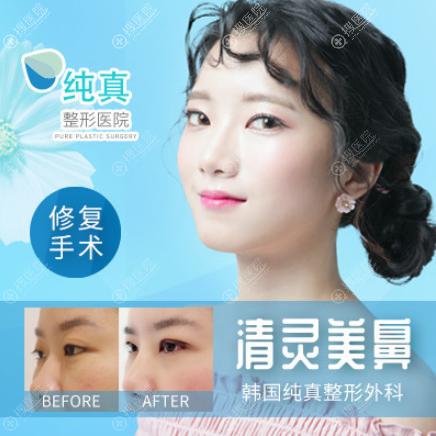 韩国纯真清灵美鼻修复案例前后效果对比图