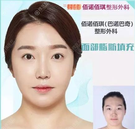 韩国佰诺佰琪自体脂肪面部填充案例