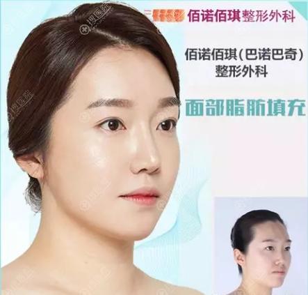 韩国巴诺巴琪脂肪面部填充术前术后效果对比图