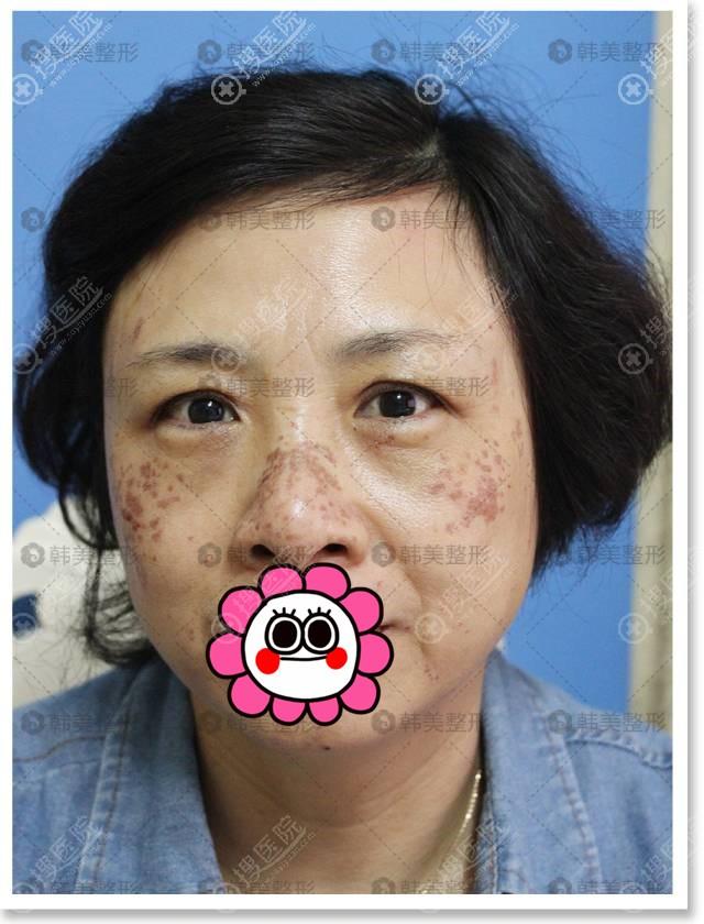 宁波韩美激光祛斑术后恢复中