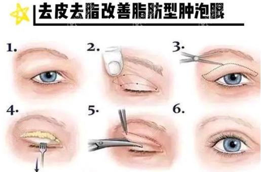 肿泡眼做埋线还是切开双眼皮好