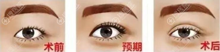肿泡眼做埋线双眼皮前后效果模拟对比图