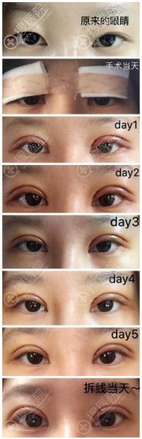 肿泡眼全切双眼皮术后恢复过程图