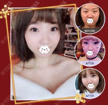 北京美莱刘晓荣为肿泡眼顾客做三级双眼皮修复前后效果对比图
