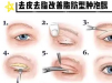 北京美莱眼修复名医刘晓荣讲肿泡眼单纯去脂去皮靠谱吗?