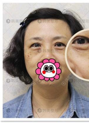 褐青色斑较重的阿姨到宁波韩美坚持激光祛斑治疗半年后的变化