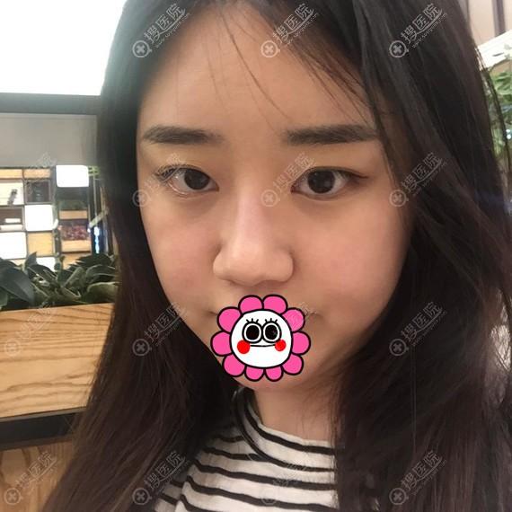 到韩国爱婷做鼻子前