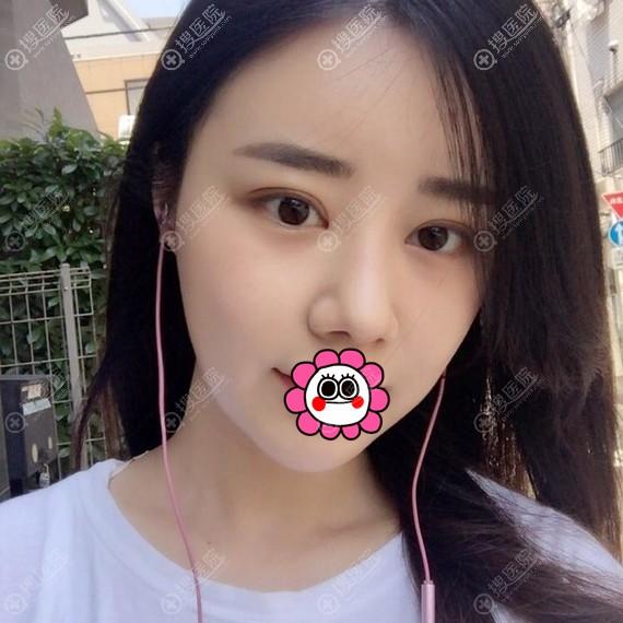 韩国爱婷做鼻子怎么样?这是我恢复半年案例效果图