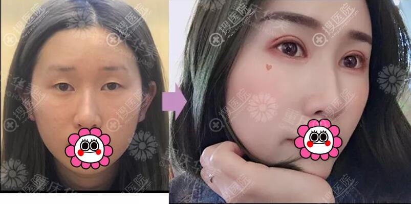 重庆华美双眼皮效果怎么样?