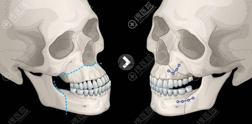 双鄂手术示意图