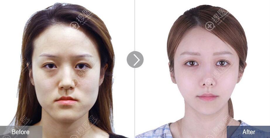 韩国菲斯莱茵双鄂手术效果怎么样