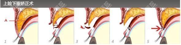 上睑下垂矫正手术示意图