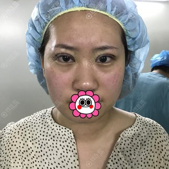 天津时光做双眼皮术后即刻