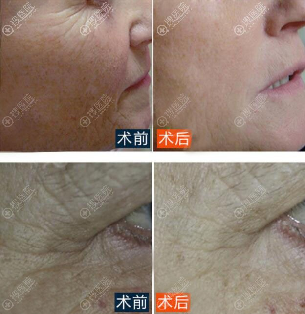 韩国原辰整形医院皮肤除皱前后效果对比图