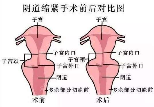 阴道紧缩手术前后效果模拟对比图