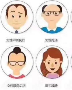 做植发手术前除了价位你更应该关心韩国植发技术真的比国内好吗