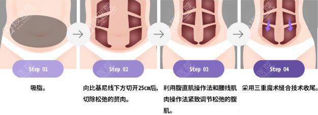 腹壁整形术手术方法示意图