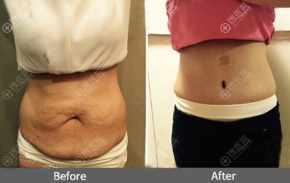 腹壁整形术真人案例前后效果对比图