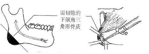 普通下颌角切除术