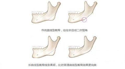 普通下颌角和长曲线下颌角区别