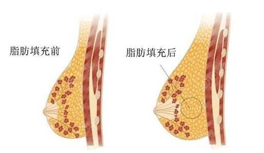自体脂肪隆胸前后对比图