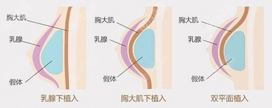 假体隆胸植入层次图