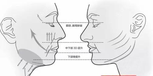 面部埋线提升原理