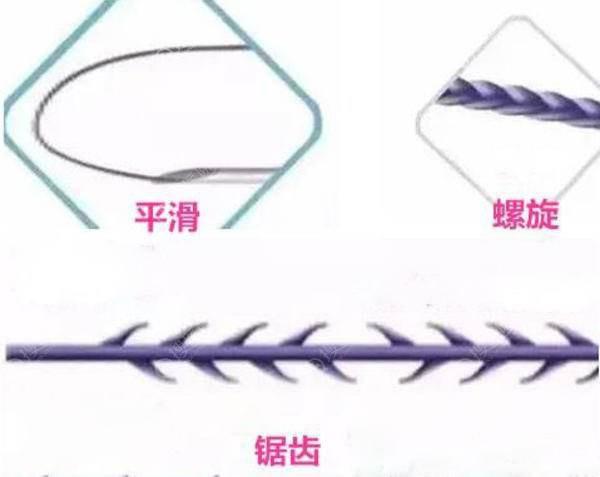 面部埋线提升不同类型的线材