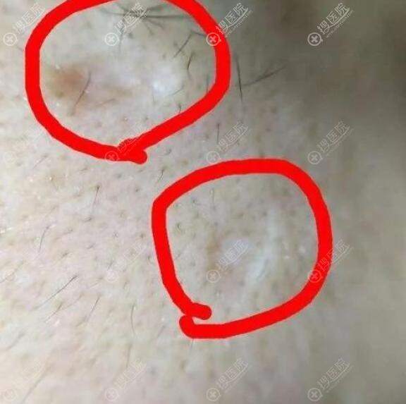 凹陷型疤痕的治疗