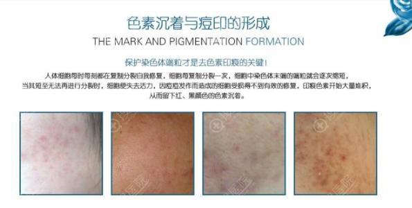 痘痘形成的色素沉着疤痕
