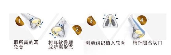 耳软骨垫鼻尖流程