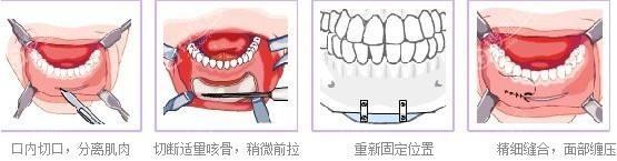 硅胶垫下巴手术过程图