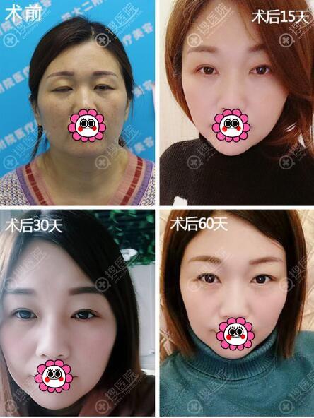 双眼皮修复恢复过程图