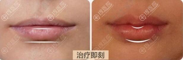 玻尿酸丰唇前后对比
